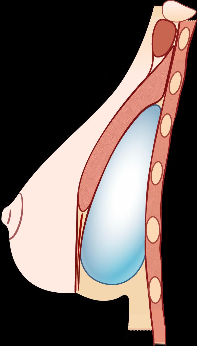 Double Bubble Breast Implant Deformity Illustration