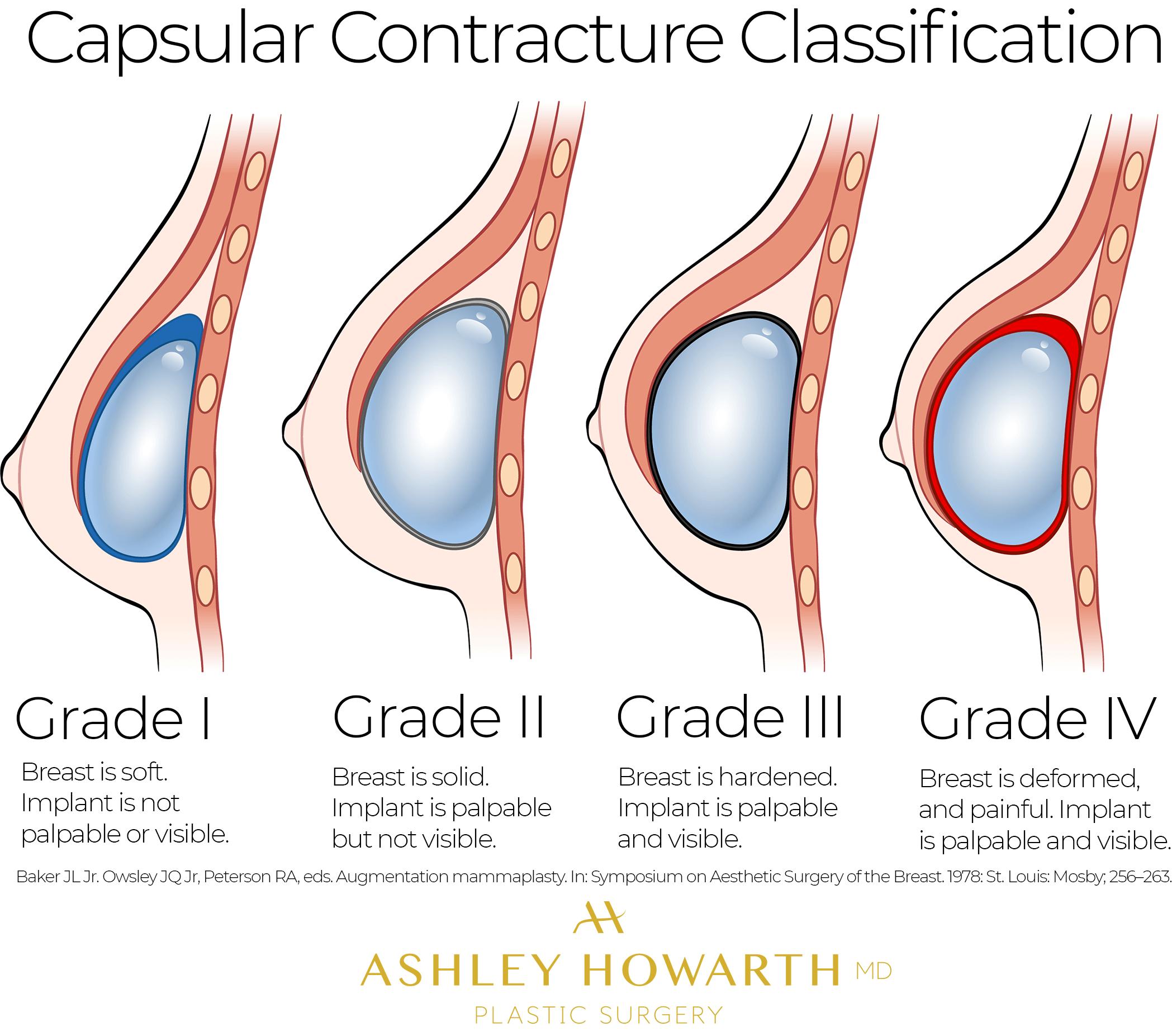 Baker Grades Capsular Contracture