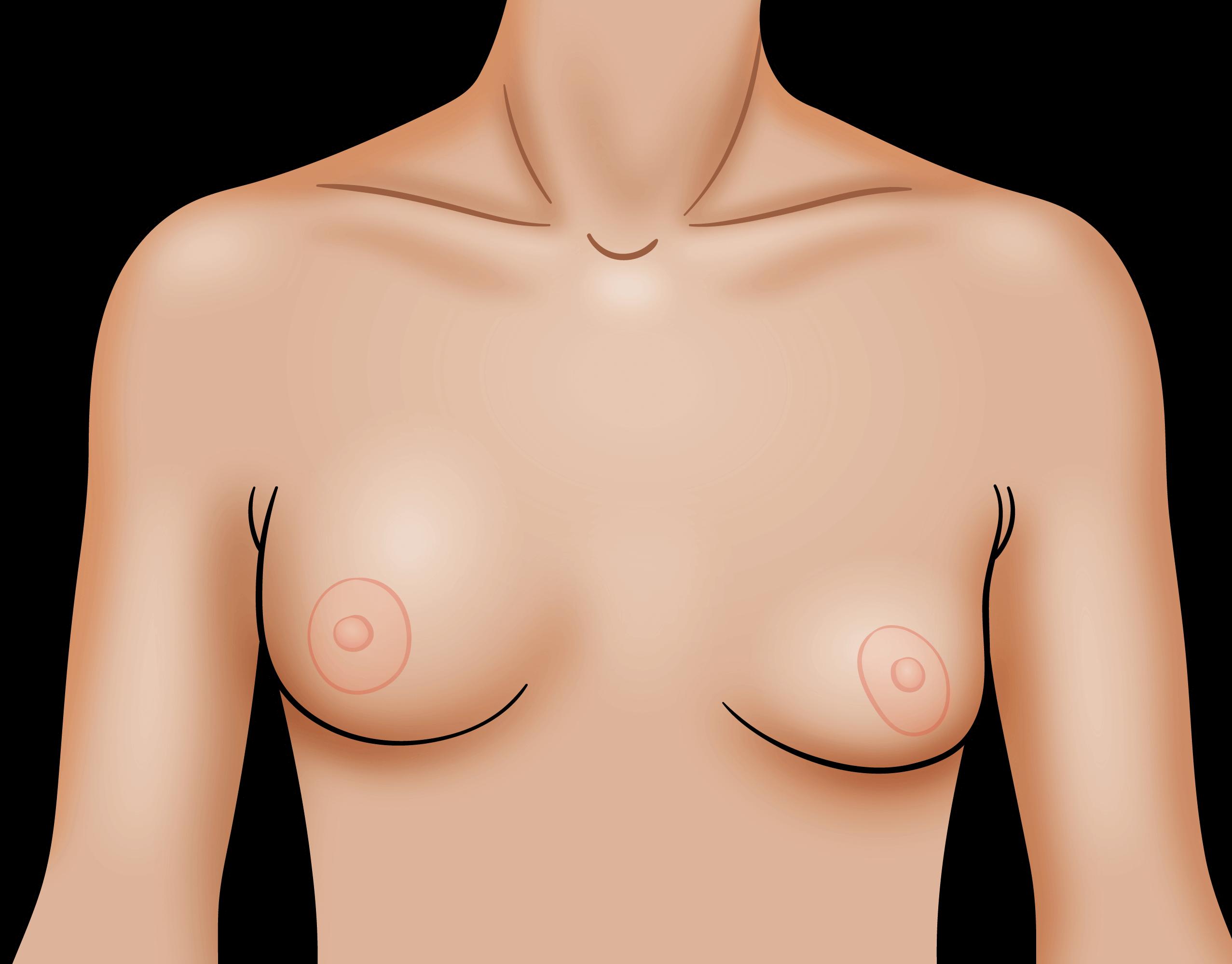 Saline Breast Implant Rupture Scottsdale Phoenix AZ