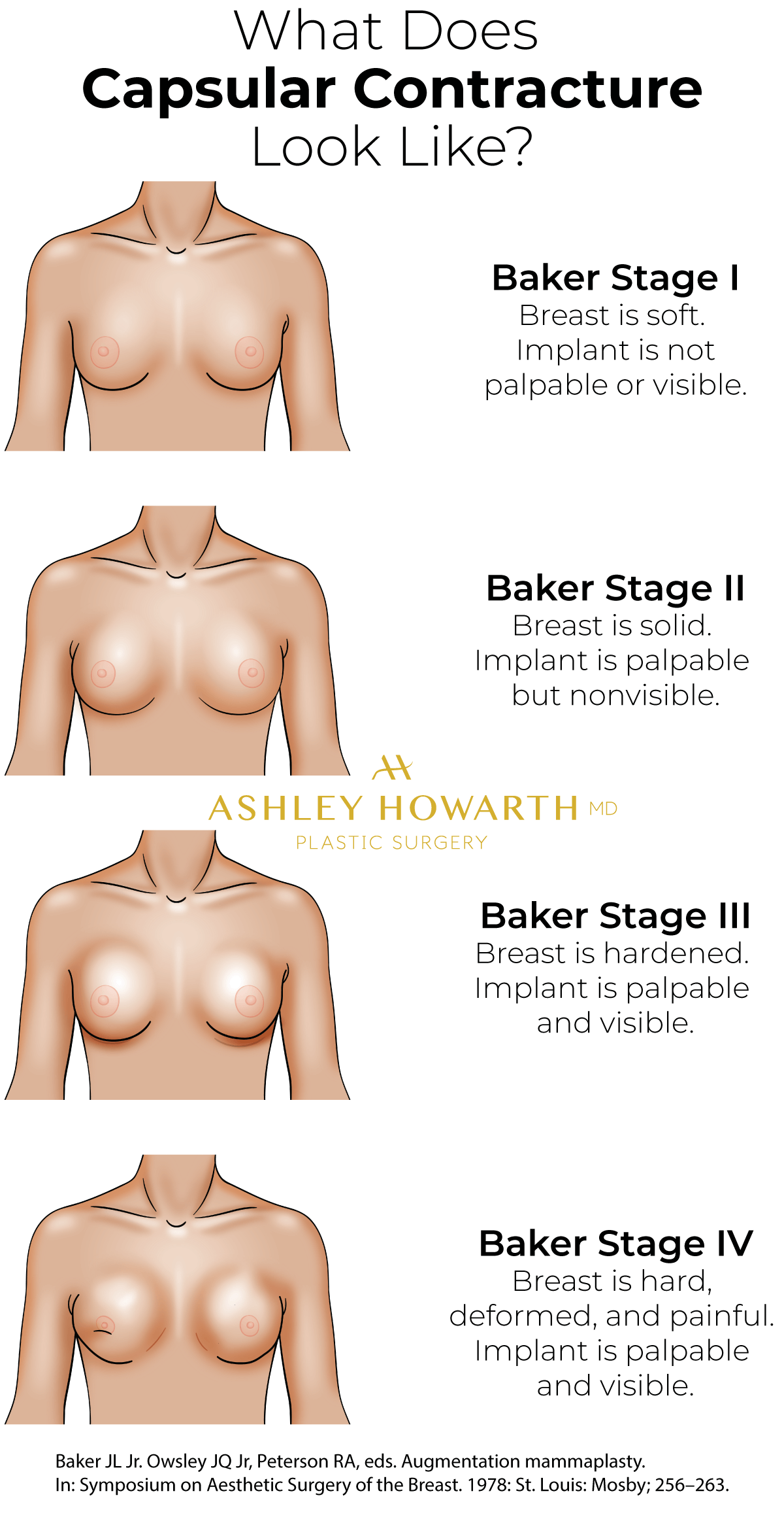 What does Capsular Contracture look like? Baker Stage 1 2 3 4