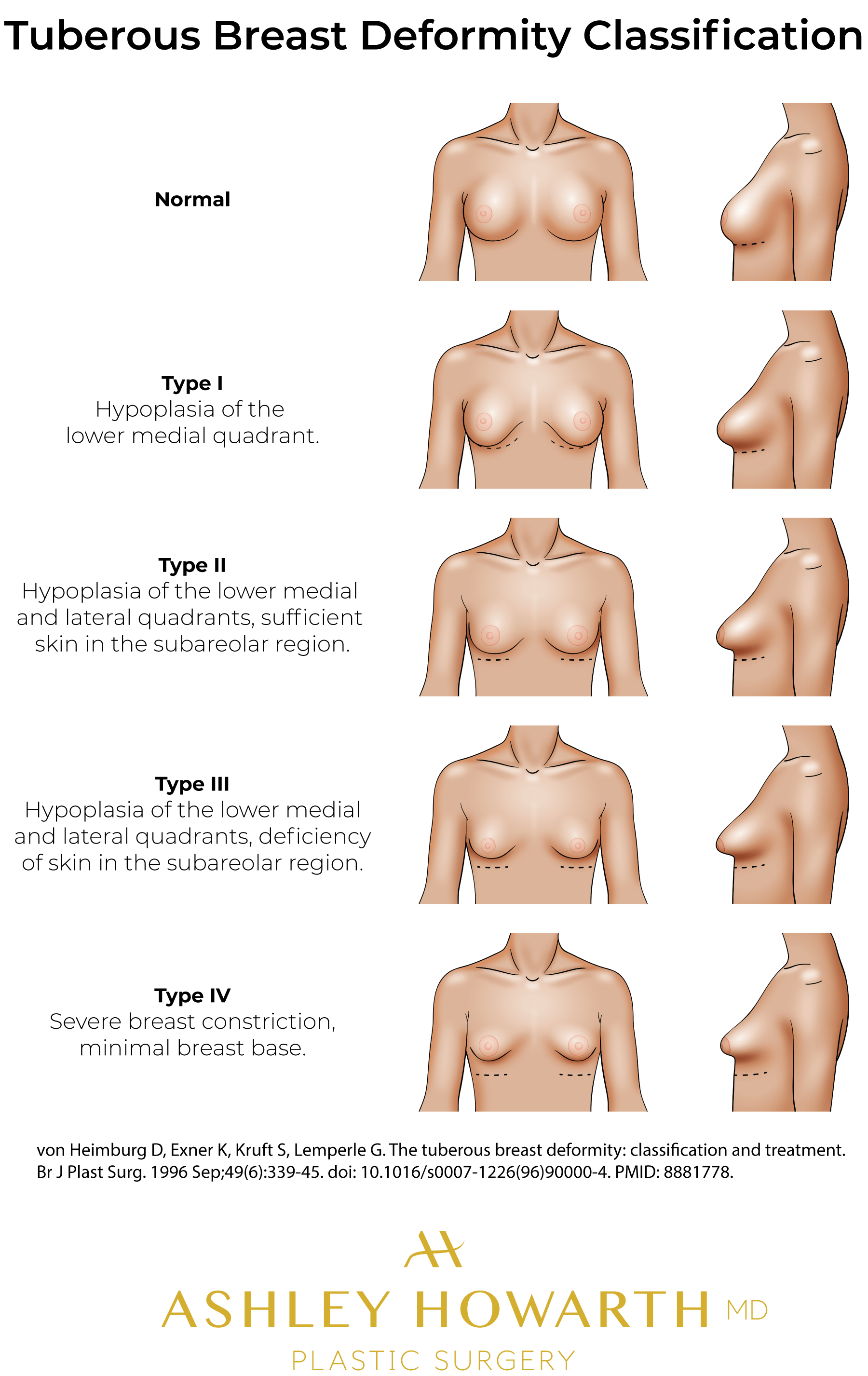 Tubular Breasts - Tuberous Breast Deformity Classification