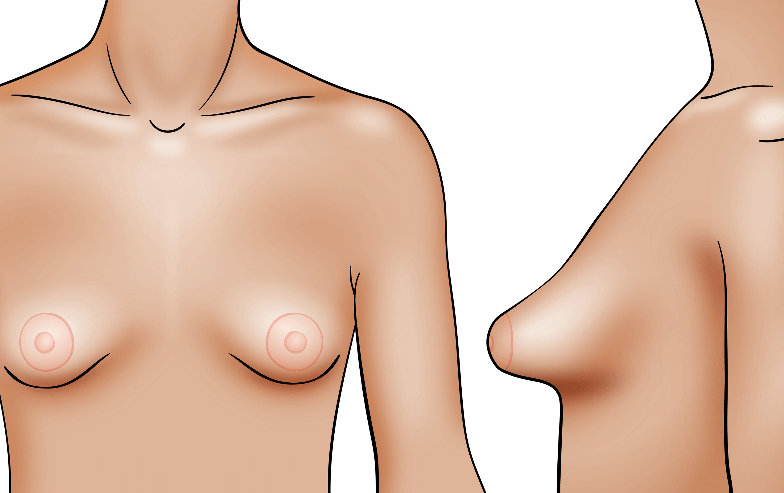 What do tubular breasts look like? Fix tuberous breasts Scottsdale AZ